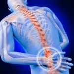 rappresentazione del dolore alla schiena